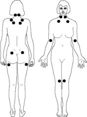 fibrom11